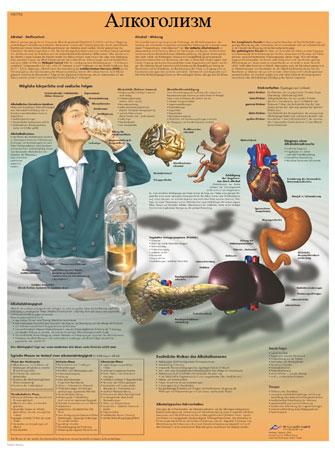 Кодировка от алкоголизма в москве на дому